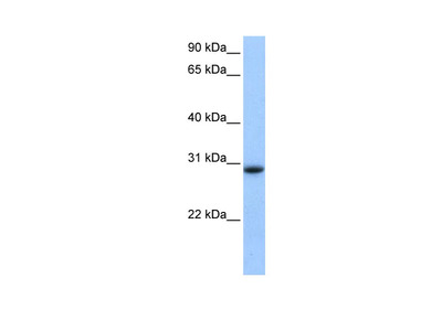 LOC139542 Polyclonal Antibody