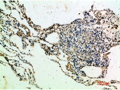 Thrombospondin 4 Antibody