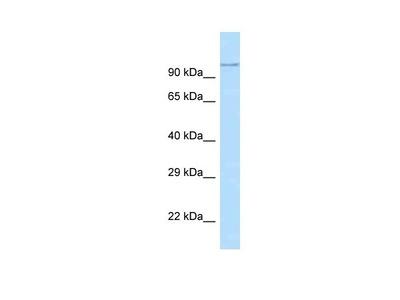 ADAM29 Antibody