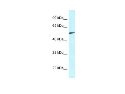EYA2 Polyclonal Antibody