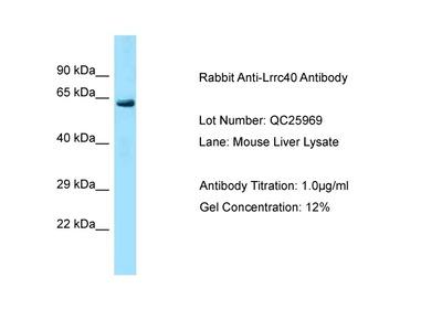 LRRC40 Polyclonal Antibody