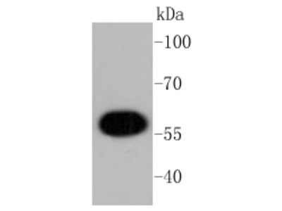 AKT1 (11F2) Monoclonal Antibody