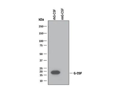 Human G-CSF Antibody