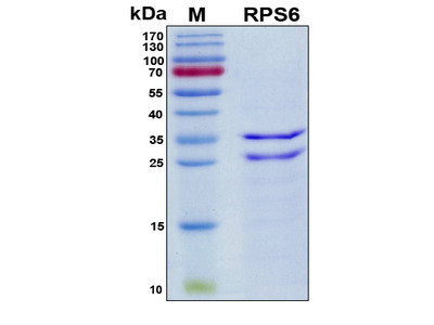 Recombinant Human 40S RP S6