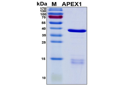 Recombinant Human APEX Nuclease