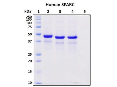 Recombinant Human SPARC/BM40