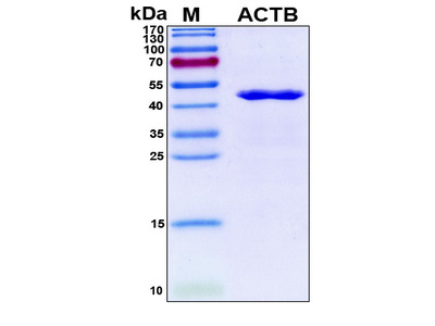 Recombinant Human Actin, Cytoplasmic 1