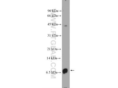 CXCL8/IL-8 Polyclonal Antibody