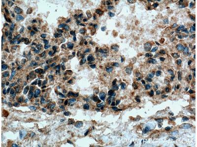 COX2/ Cyclooxygenase 2/ PTGS2 Polyclonal Antibody