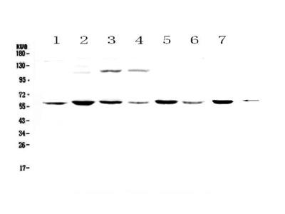 Anti-Nicotinic Acetylcholine Receptor alpha 3/CHRNA3 Antibody Picoband