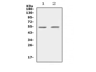 Anti-Protein C/PROC Picoband Antibody