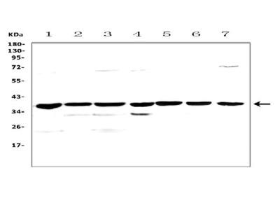 Anti-uPA Receptor/Plaur Picoband Antibody