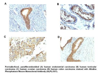 Anti-Alkaline Phosphatase Antibody (ALPL/597)