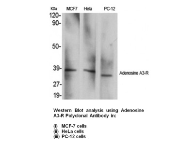 Anti-Adenosine A3-R Antibody