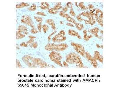 Anti-AMACR / p504S Antibody (AMACR/1723)