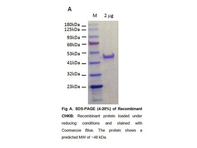 Choline Kinase B, Human Recombinant