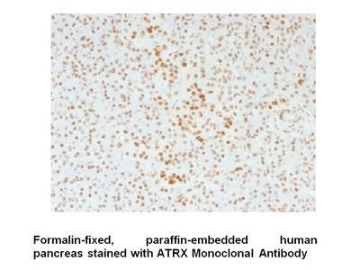 Anti-ATRX / RAD54 Antibody (39f)
