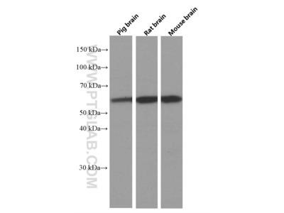 PPP3CB Monoclonal Antibody