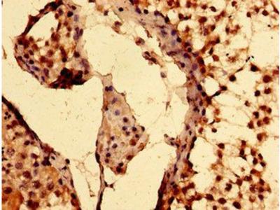 EPAS1 antibody