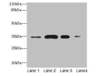 SLC38A2 peptide