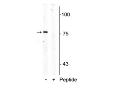 SLC6A4 / 5-HTTLPR / Serotonin transporter [p Thr276] Antibody