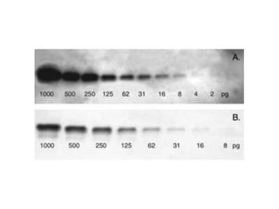 VECTASTAIN(R) ABC-AMP anti-Rabbit IgG AP Staining Kit (Colorimetric)