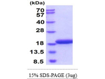 gamma-Synuclein Recombinant Protein