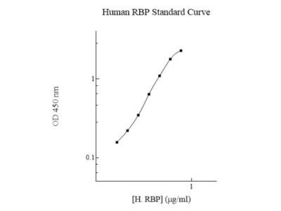 Human Retinol Binding Protein RBP ELISA Kit (Colorimetric)