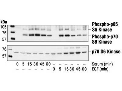 Time Course Effect of MCP-1 Induced Phosho p70S6 Kinase in HASMS