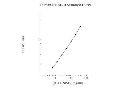 Human CENPB ELISA Kit (Colorimetric)