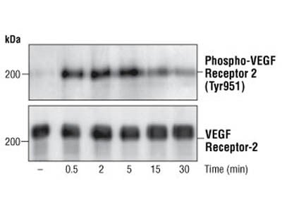 Good Antibody to Detect Activated VEGFR2
