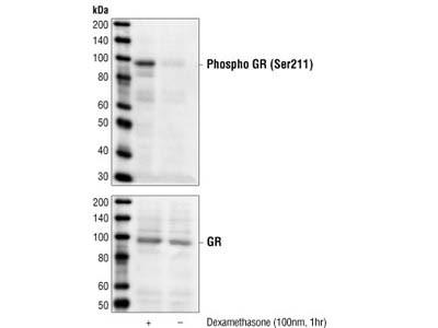 Phospho-Glucocorticoid Receptor (Ser211) Antibody