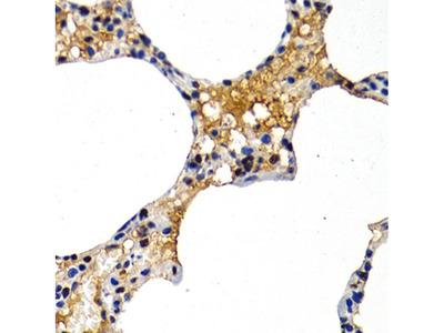 MT2A Polyclonal Antibody