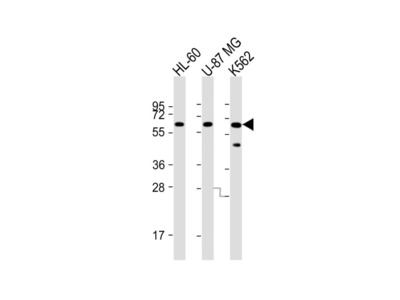 IL1RL2 Polyclonal Antibody