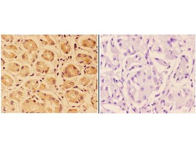 PTPRO Polyclonal Antibody