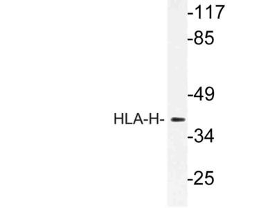 HFE Polyclonal Antibody