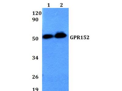 GPR152 Polyclonal Antibody