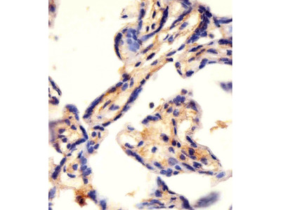 CAD Polyclonal Antibody