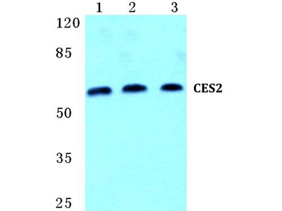 CES2 Polyclonal Antibody