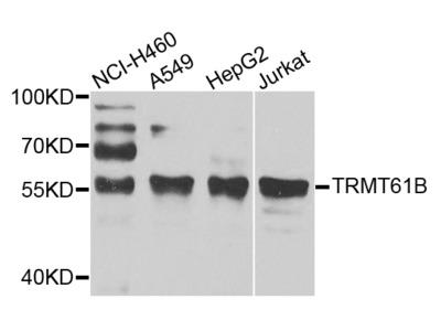 TRMT61B Polyclonal Antibody
