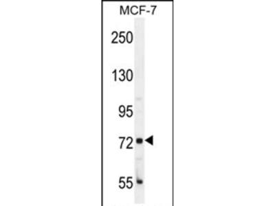 CTAGE4 Polyclonal Antibody