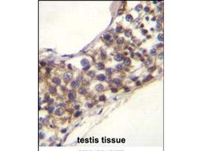 PNLDC1 Polyclonal Antibody