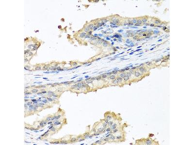 Ceruloplasmin Polyclonal Antibody