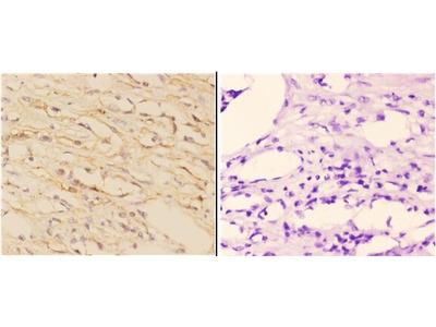 ABCA7 Polyclonal Antibody