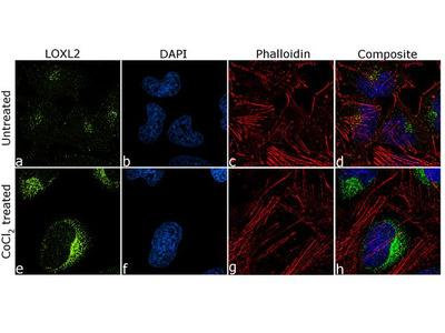 LOXL2 Recombinant Polyclonal Antibody (7HCLC)