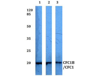 CFC1B/CFC1 Polyclonal Antibody