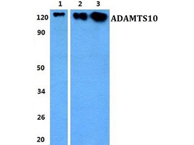 ADAMTS10 Antibody