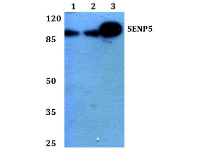 SENP5 Polyclonal Antibody