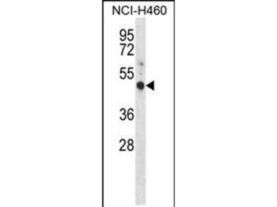 GPR30 Polyclonal Antibody