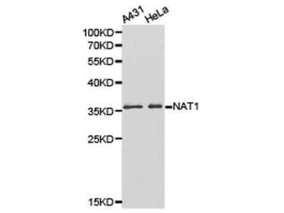 NAT1 Polyclonal Antibody